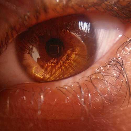 Juhász Ádám: A szemem